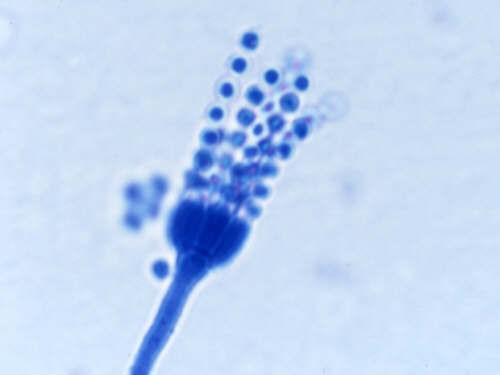 I funghi micotossigeni e le micotossine