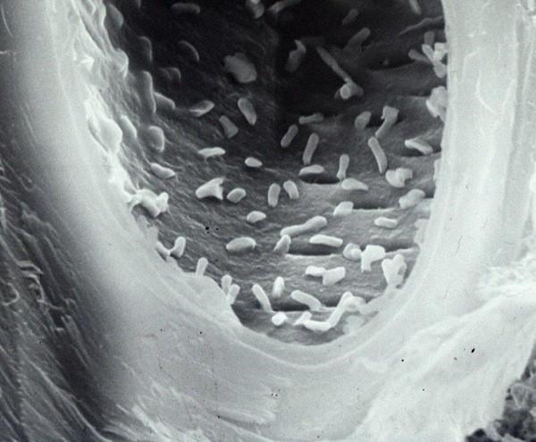 I batteri delle tossinfezioni da vegetali freschi